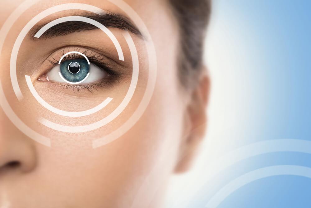 LASIK ring around a woman's eyes